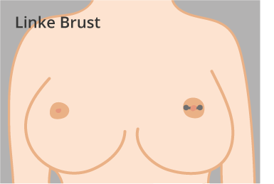 Linke-Brust-Konfi