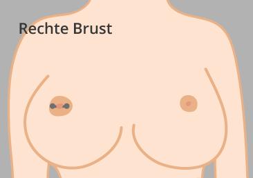 Rechte-Brust-Konfi